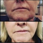 Laser Skin Tightening Treatment at Medical Day Spa of Chapel Hill NC