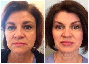 Collagen Cosmetic Dermal Filler Before and after at Medical Day Spa of Chapel Hill