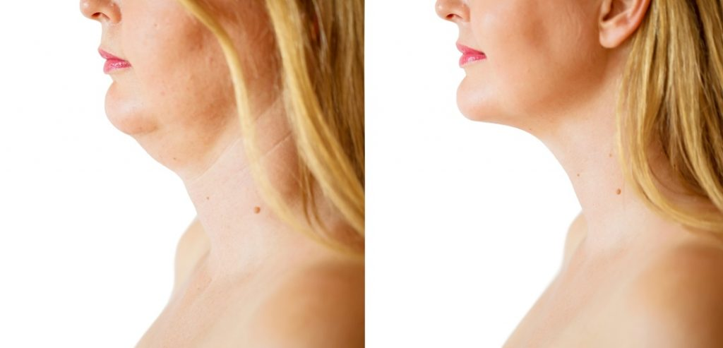 Kybella before and after at amedical Day Spa of Chapel Hill NC - 1080x520