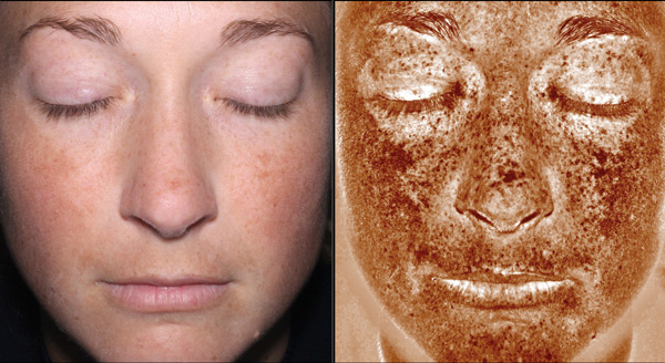 FREE Reveal Image and Skin Consultation at Medical Day Spa of Chapel Hill NC
