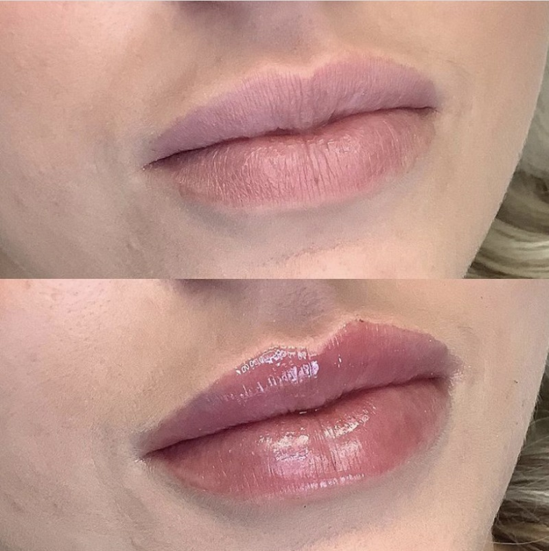 Lip Filler Injections at Medical Day Spa of Chapel Hill NC-2