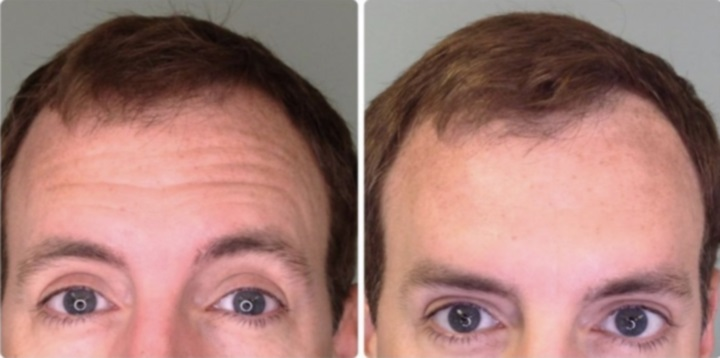 Botox for Men at Medical Day Spa of Chapel Hill NC