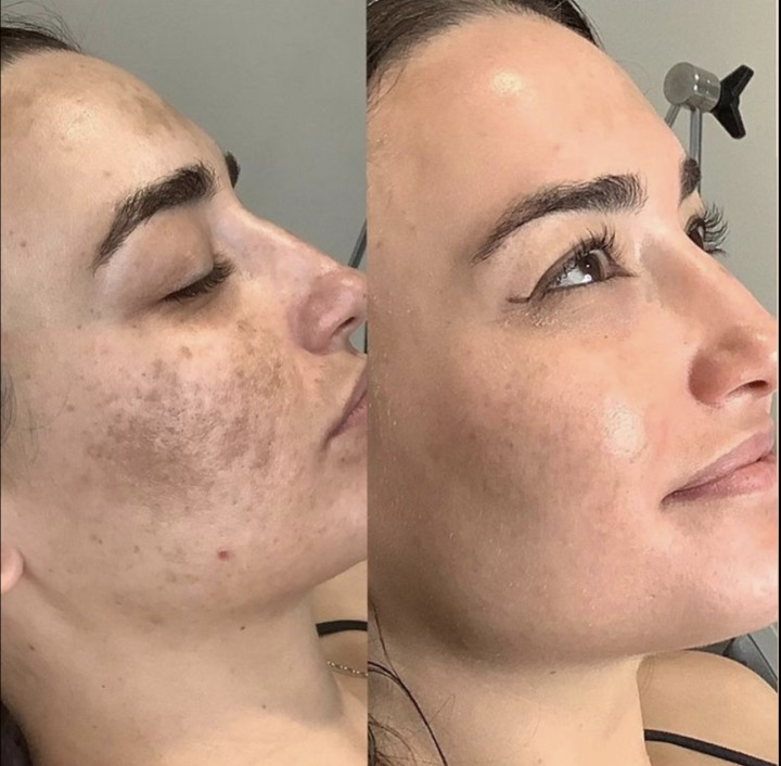 Chemical Peel Before after image at Medical Day Spa of Chapel Hill NC
